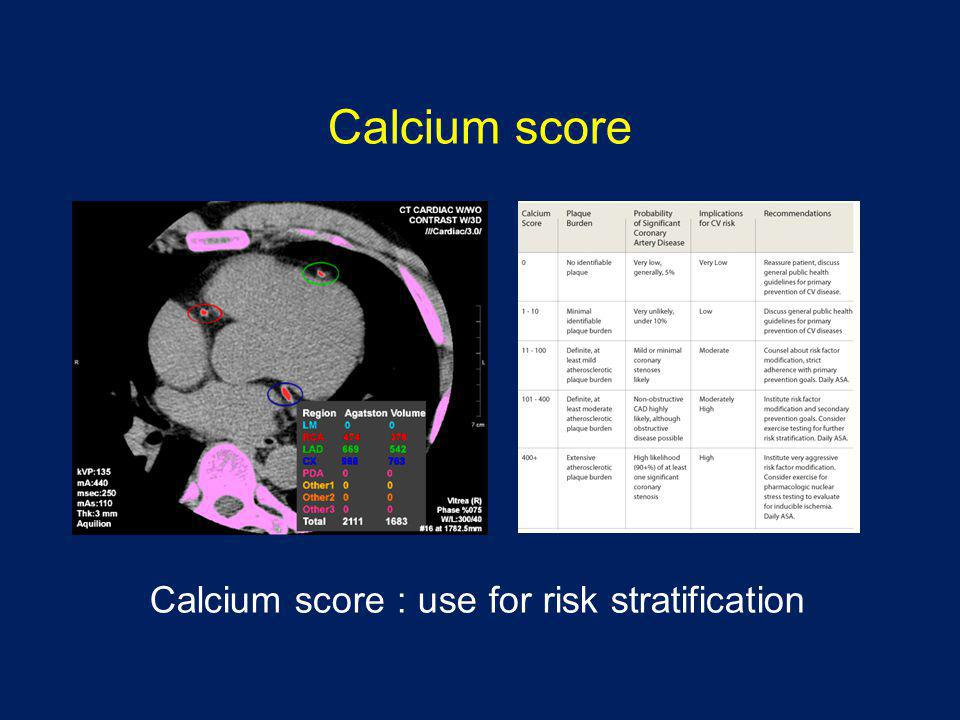 Calcium score Calcium score : use for risk stratification