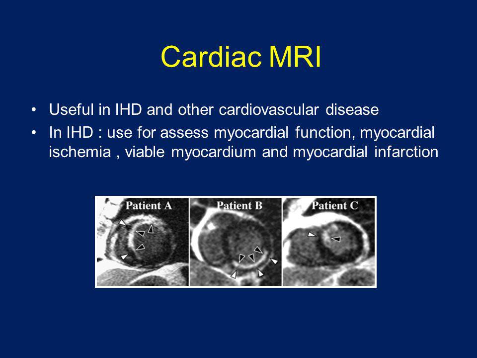 Cardiac MRI Useful in IHD and other cardiovascular disease