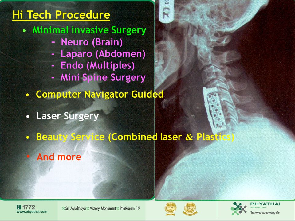 Hi Tech Procedure And more Minimal invasive Surgery - Neuro (Brain)