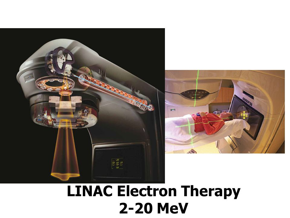 LINAC Electron Therapy