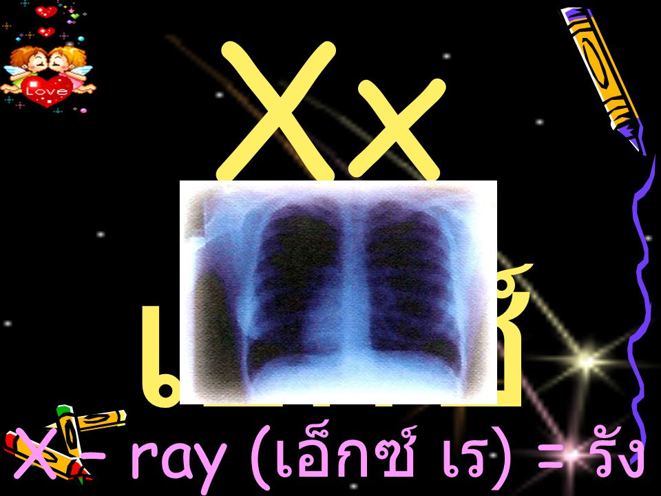 X – ray (เอ็กซ์ เร) = รังสีเอ็กซ์