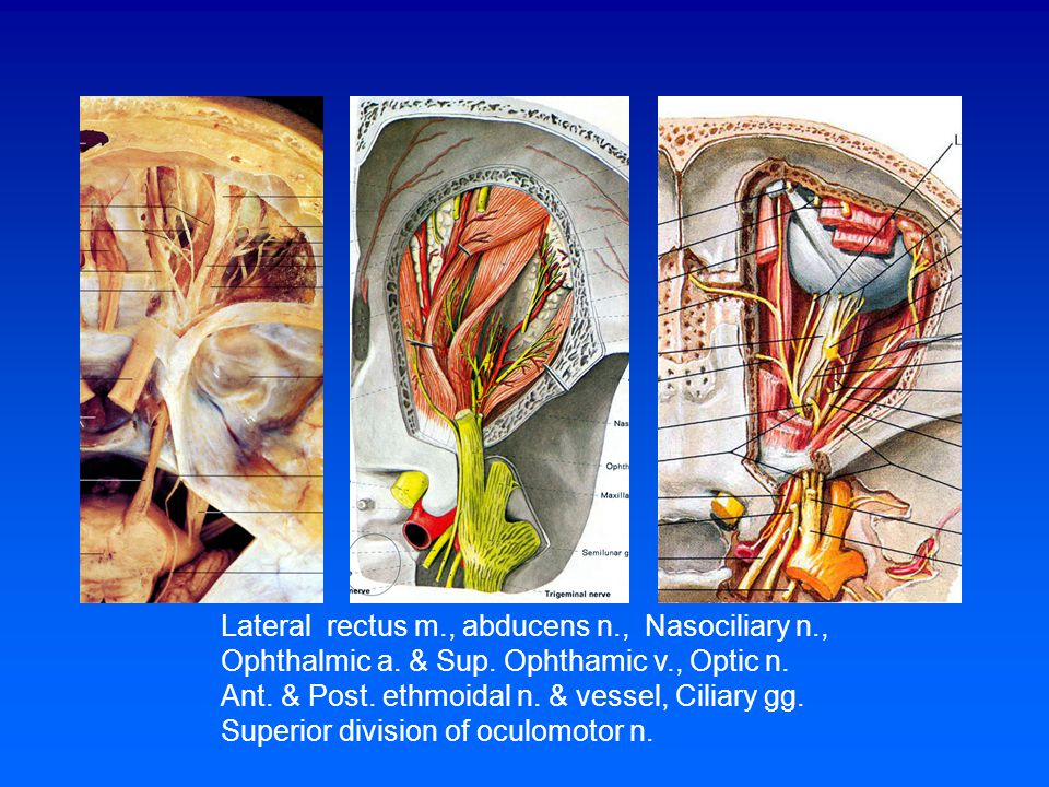 Lateral rectus m., abducens n., Nasociliary n.,