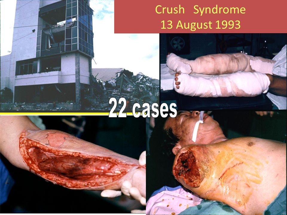 Crush Syndrome 13 August 1993 22 cases