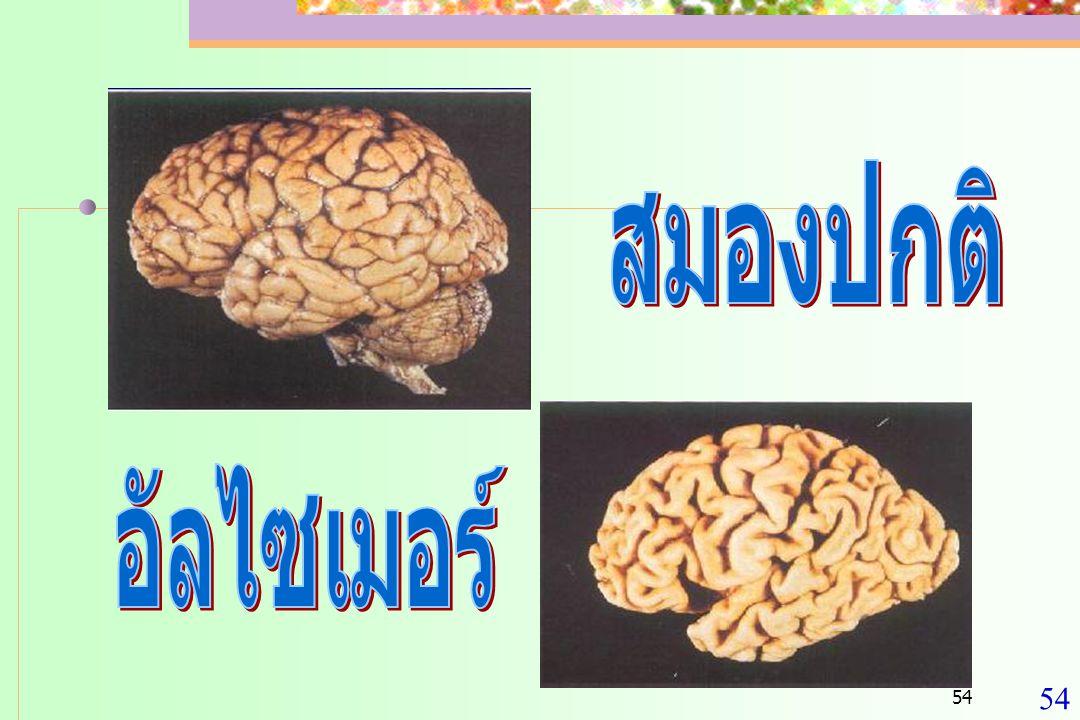 สมองปกติ อัลไซเมอร์ 54