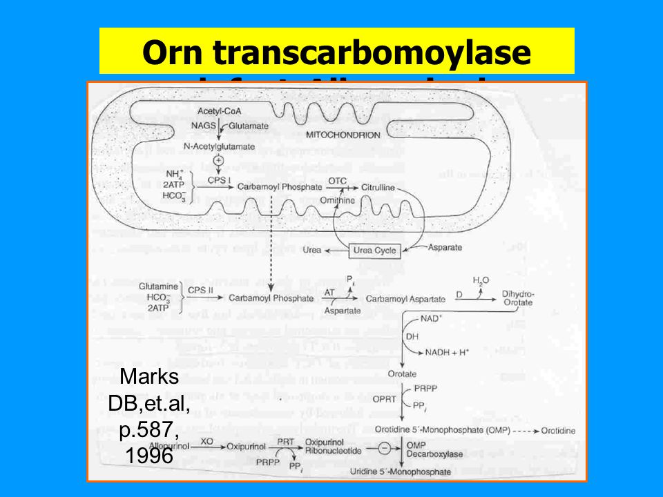 Orn transcarbomoylase defect-Allopurinol