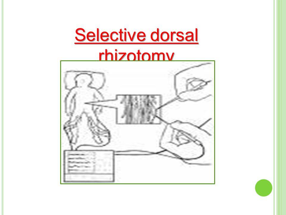 Selective dorsal rhizotomy