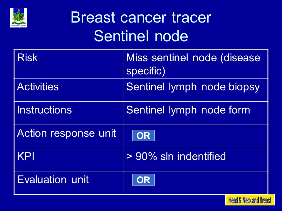 Breast cancer tracer Sentinel node