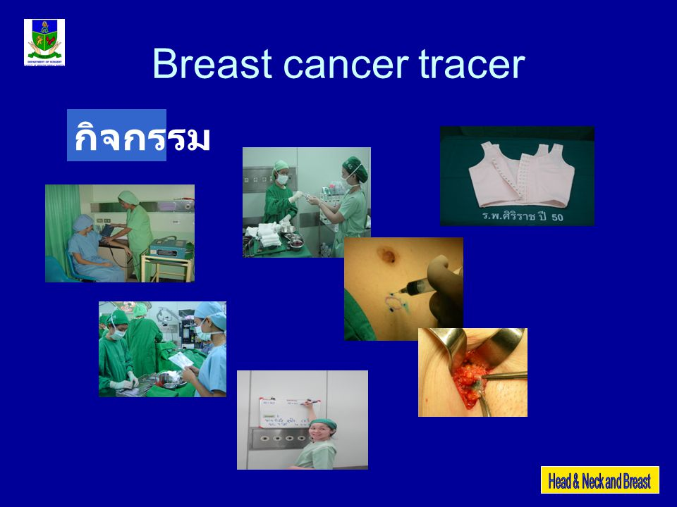 Breast cancer tracer กิจกรรม
