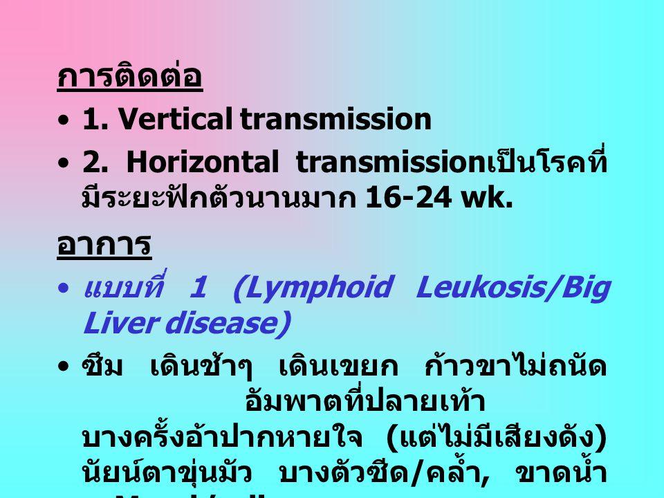 การติดต่อ อาการ 1. Vertical transmission