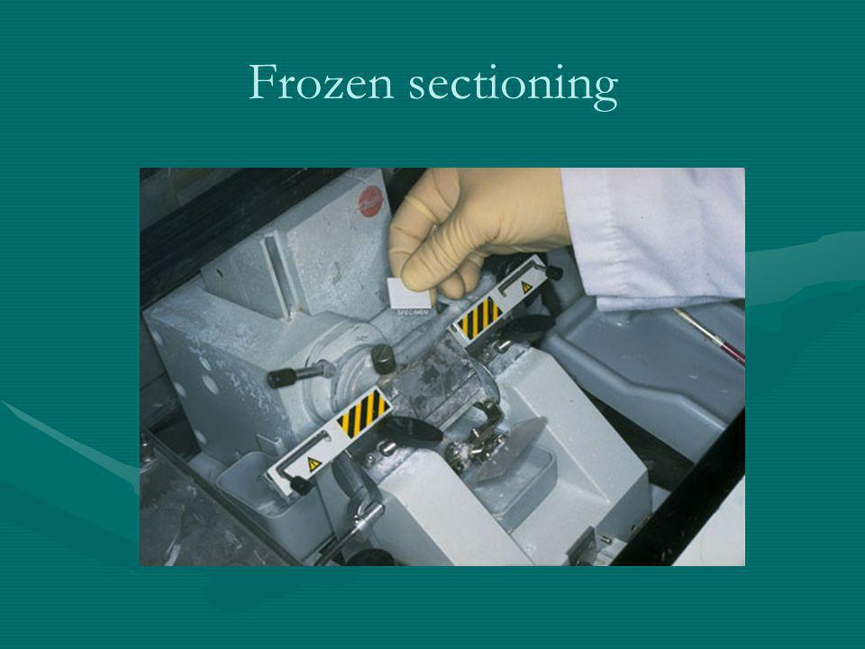 Frozen sectioning