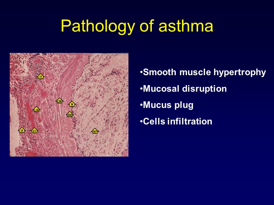 Pathology of asthma Smooth muscle hypertrophy Mucosal disruption