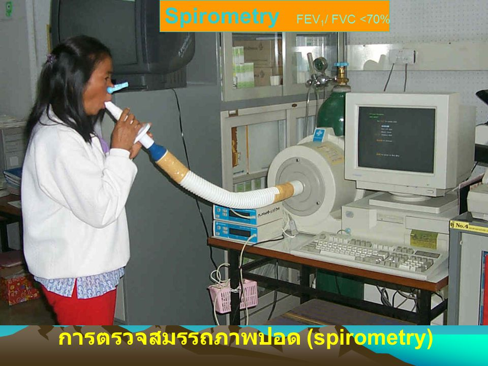 Spirometry FEV1/ FVC <70%