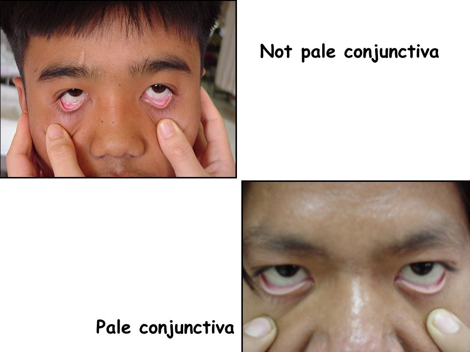 Not pale conjunctiva Pale conjunctiva