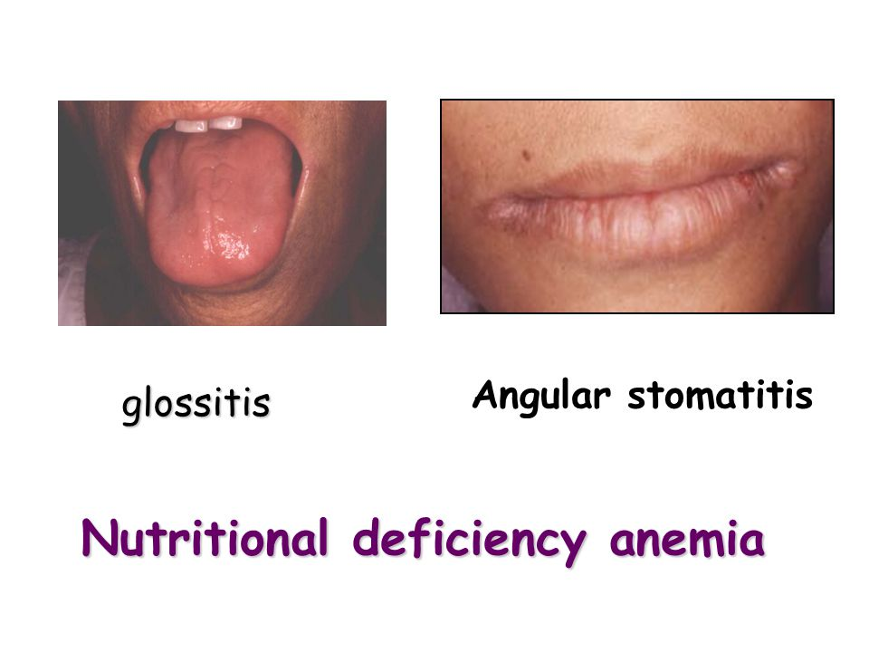 Nutritional deficiency anemia