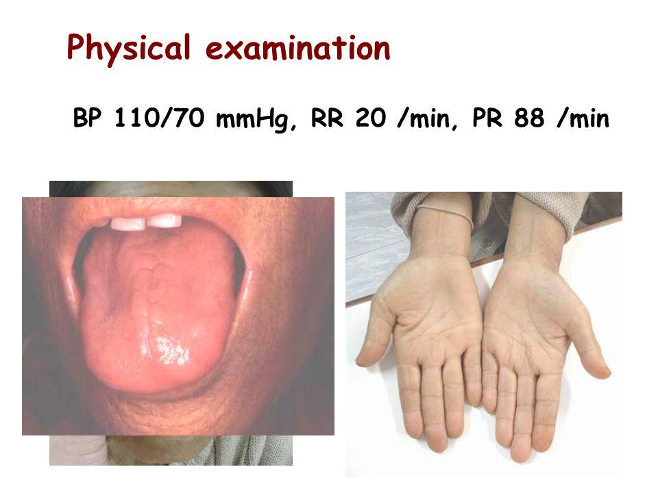 Physical examination BP 110/70 mmHg, RR 20 /min, PR 88 /min