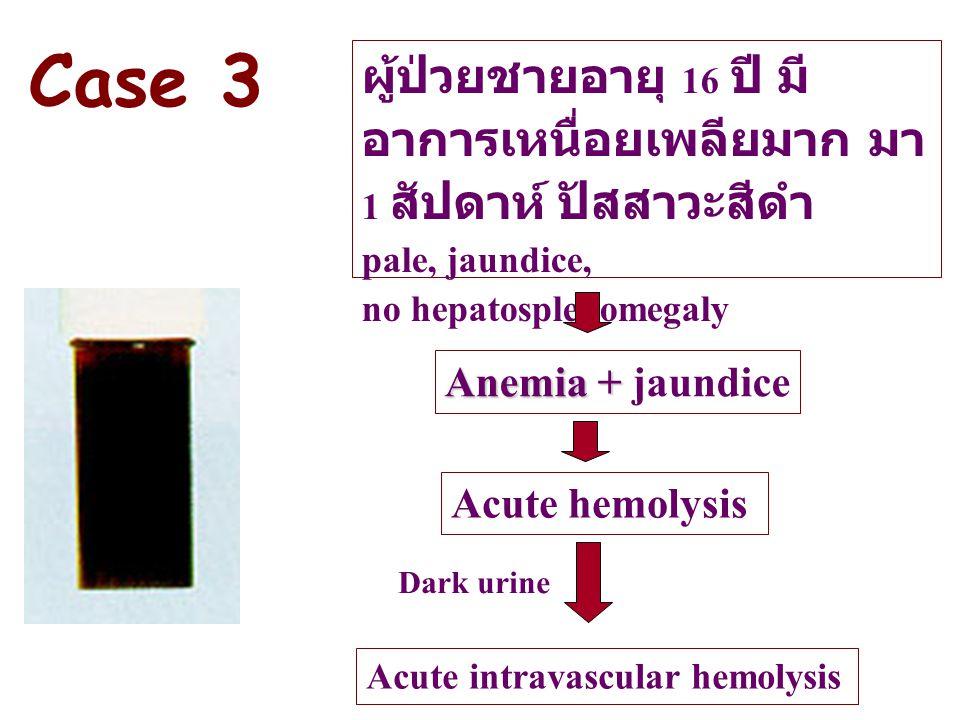 Case 3 ผู้ป่วยชายอายุ 16 ปี มีอาการเหนื่อยเพลียมาก มา 1 สัปดาห์ ปัสสาวะสีดำ. pale, jaundice, no hepatosplenomegaly.