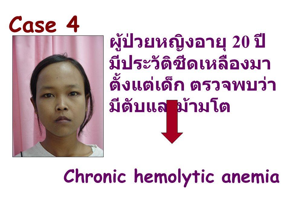 Case 4 ผู้ป่วยหญิงอายุ 20 ปี มีประวัติซีดเหลืองมาตั้งแต่เด็ก ตรวจพบว่ามีตับและม้ามโต.