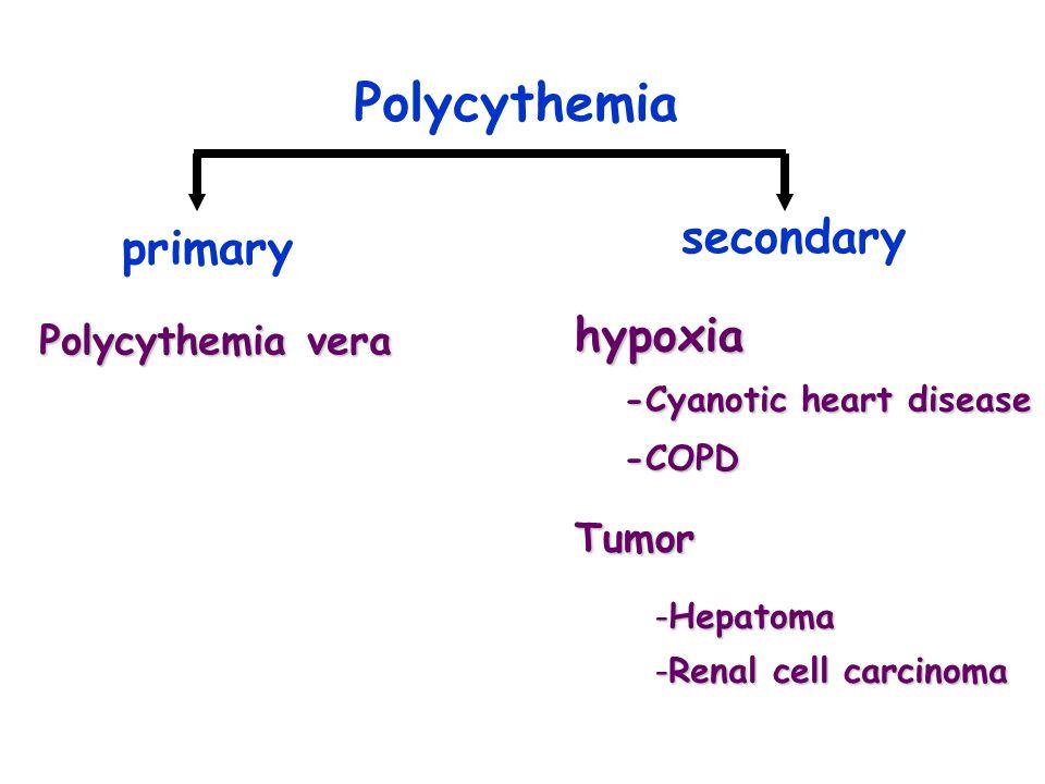 Polycythemia secondary primary hypoxia Polycythemia vera Tumor