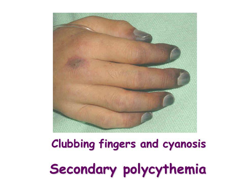 Secondary polycythemia