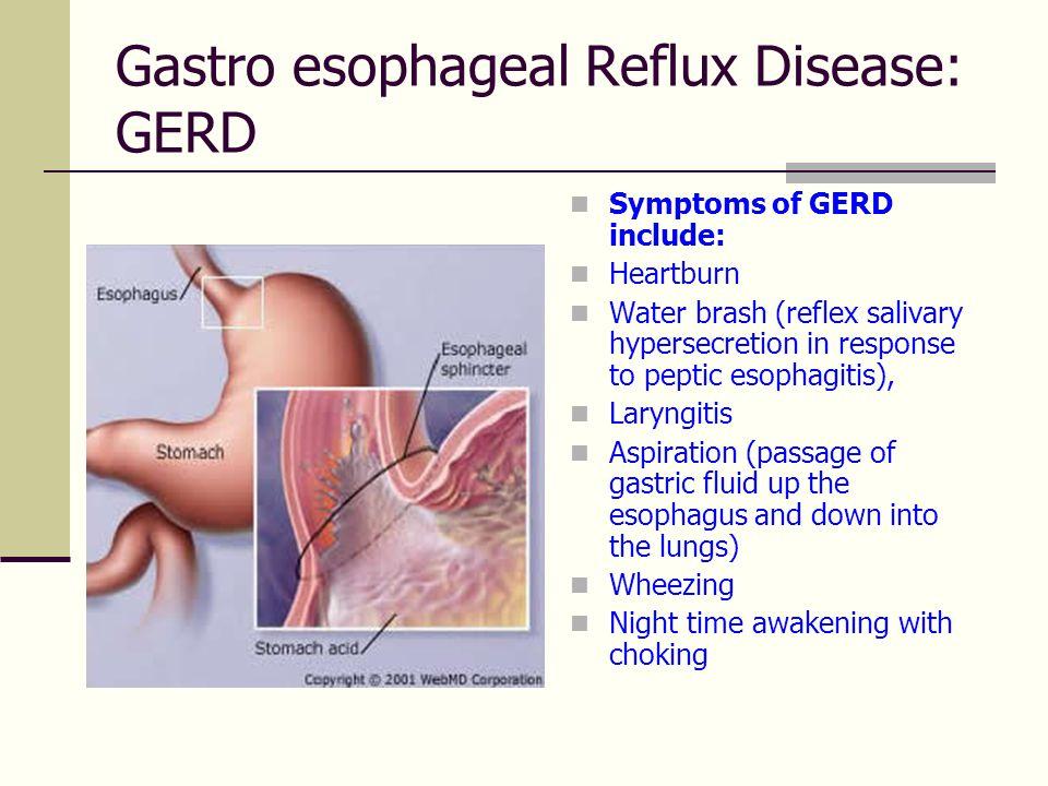 Gastro esophageal Reflux Disease: GERD