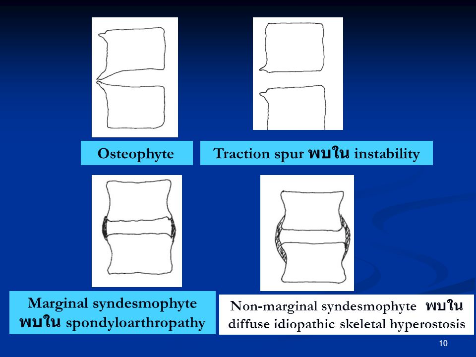 Traction spur พบใน instability