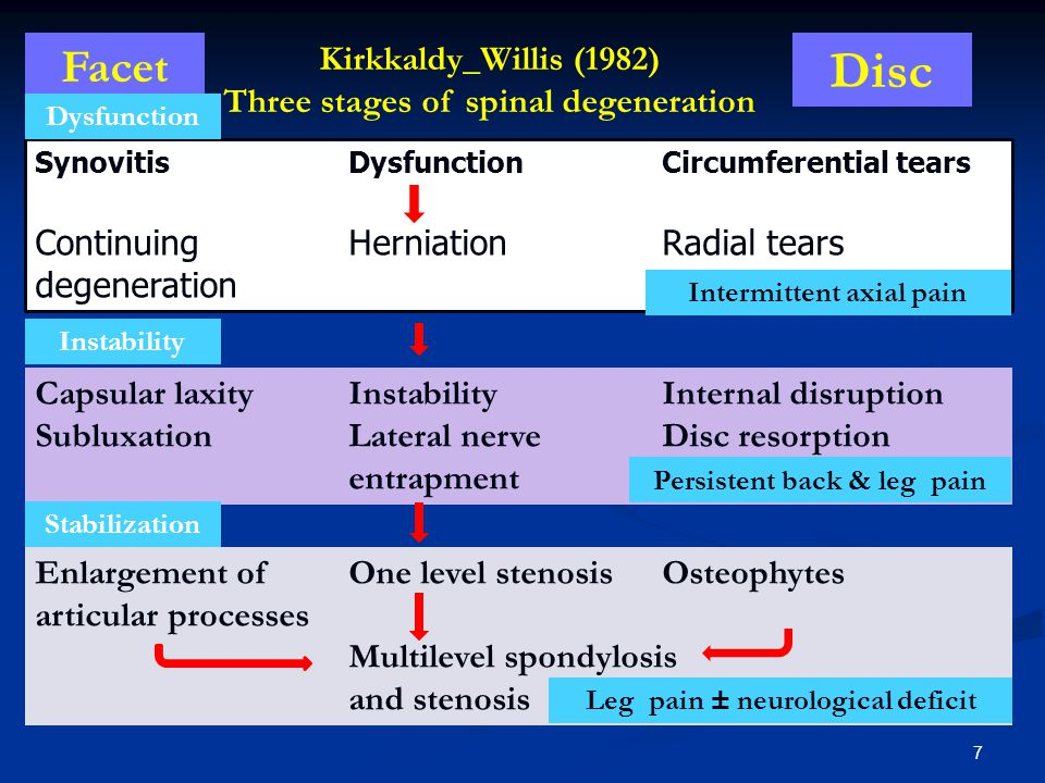Disc Facet Kirkkaldy_Willis (1982) Three stages of spinal degeneration