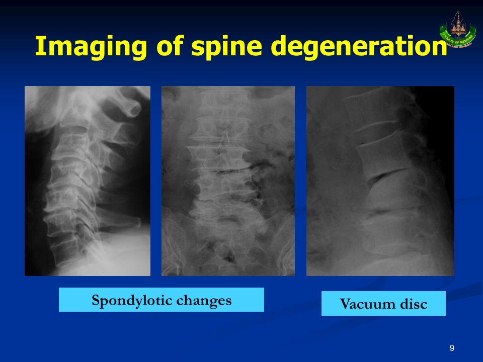 Imaging of spine degeneration