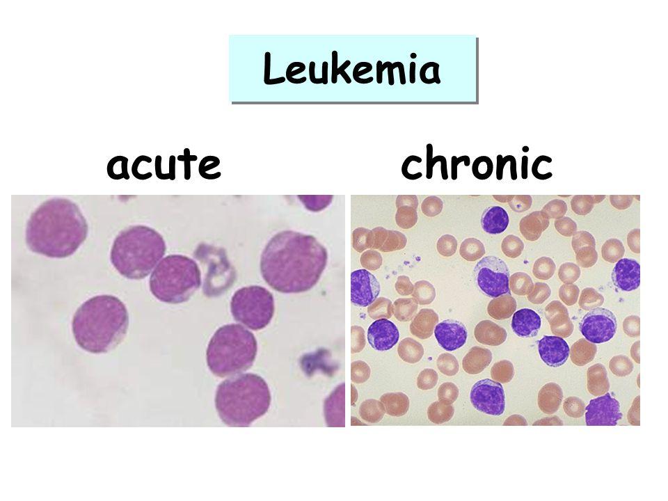 Leukemia acute chronic