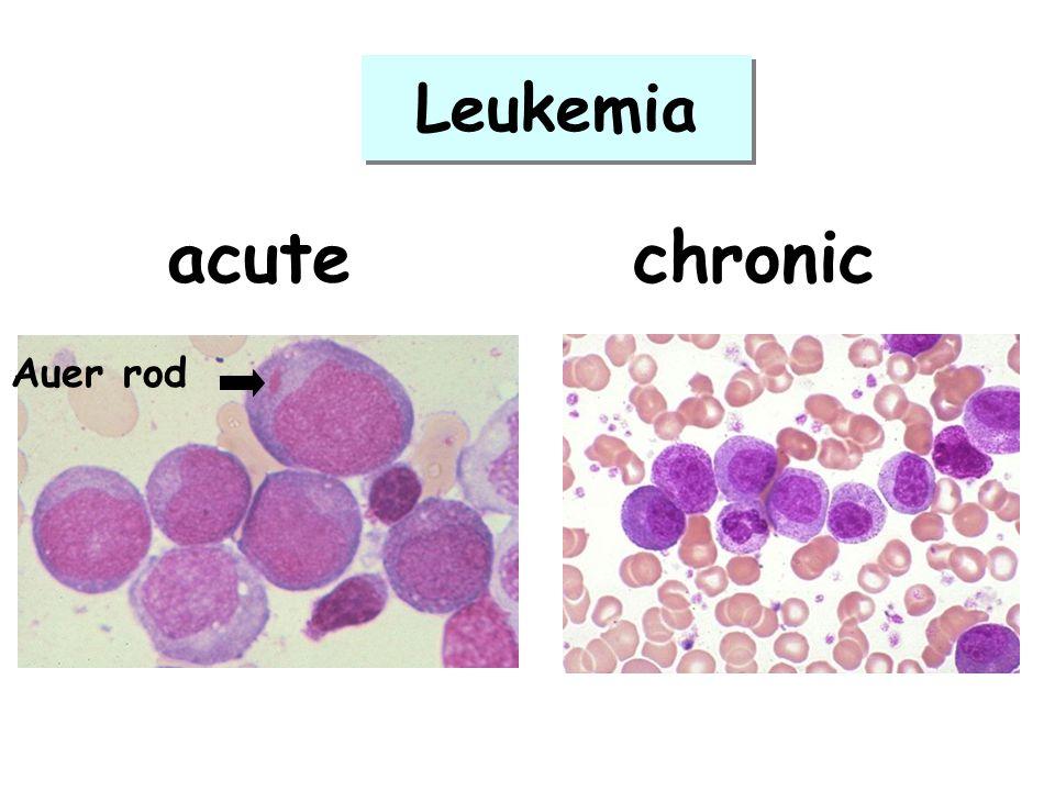 Leukemia acute chronic Auer rod