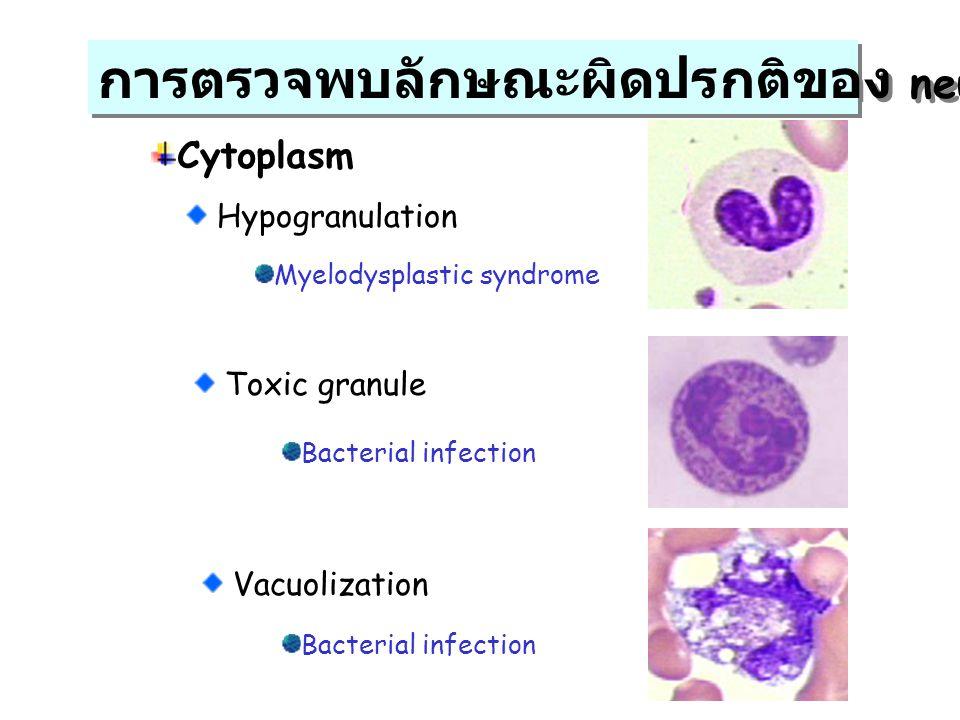 การตรวจพบลักษณะผิดปรกติของ neutrophil
