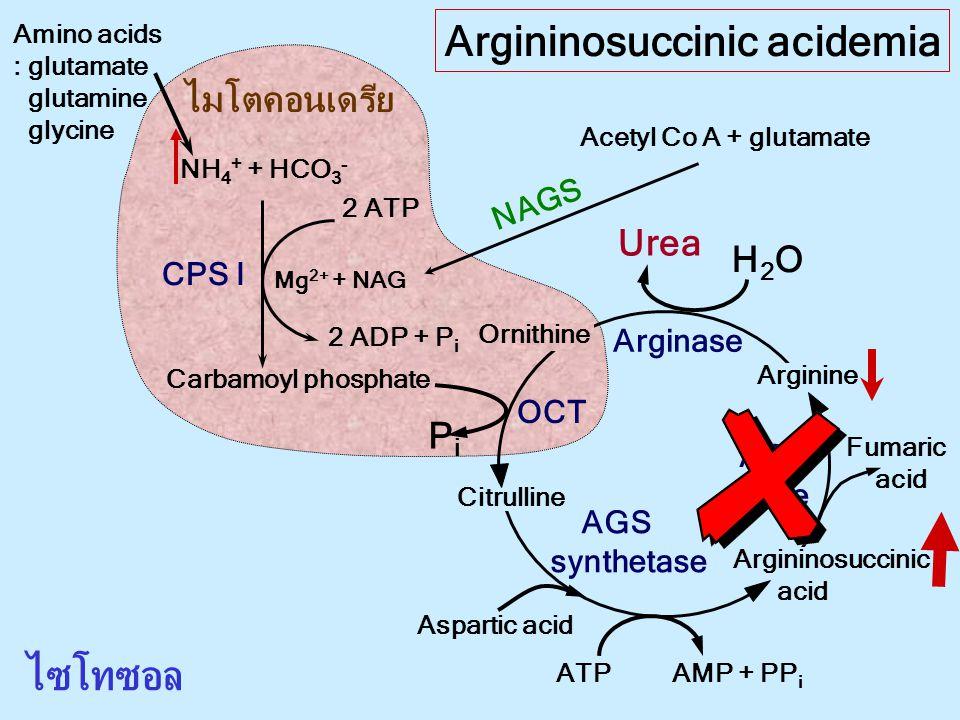Argininosuccinic acidemia