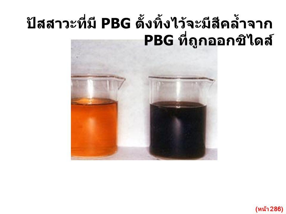 ปัสสาวะที่มี PBG ตั้งทิ้งไว้จะมีสีคล้ำจาก PBG ที่ถูกออกซิไดส์