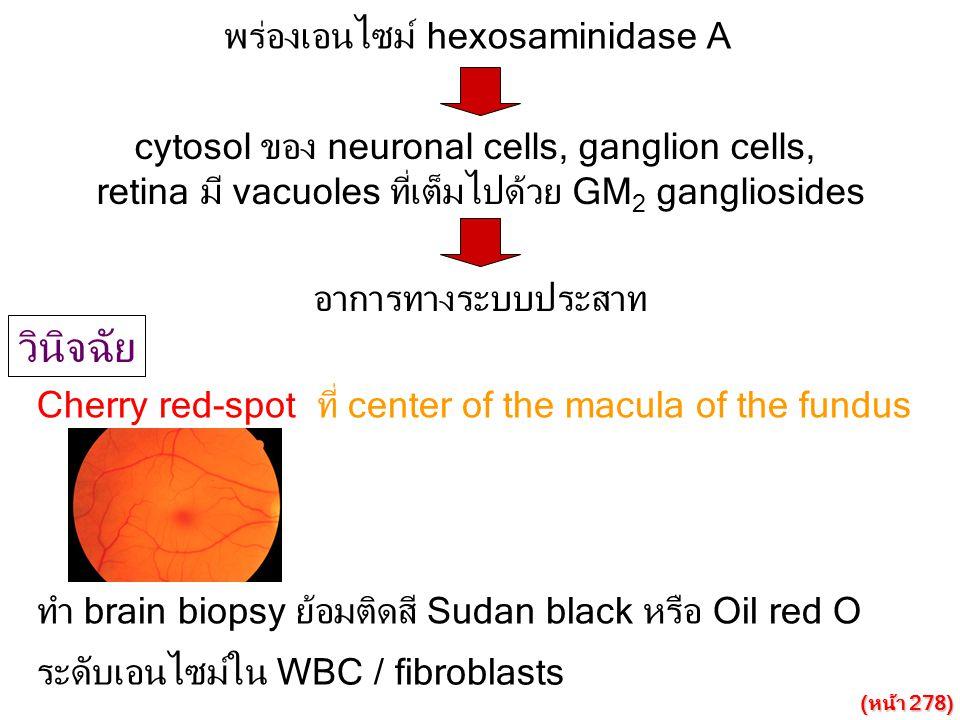 วินิจฉัย พร่องเอนไซม์ hexosaminidase A