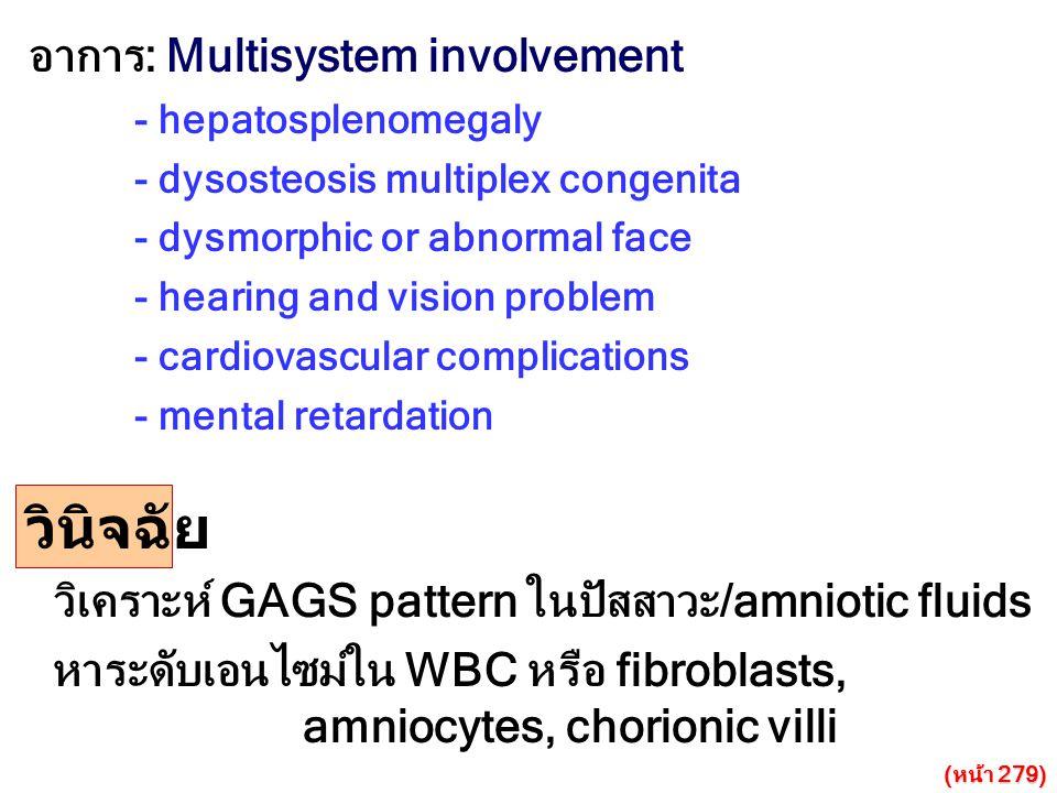 วินิจฉัย อาการ: Multisystem involvement