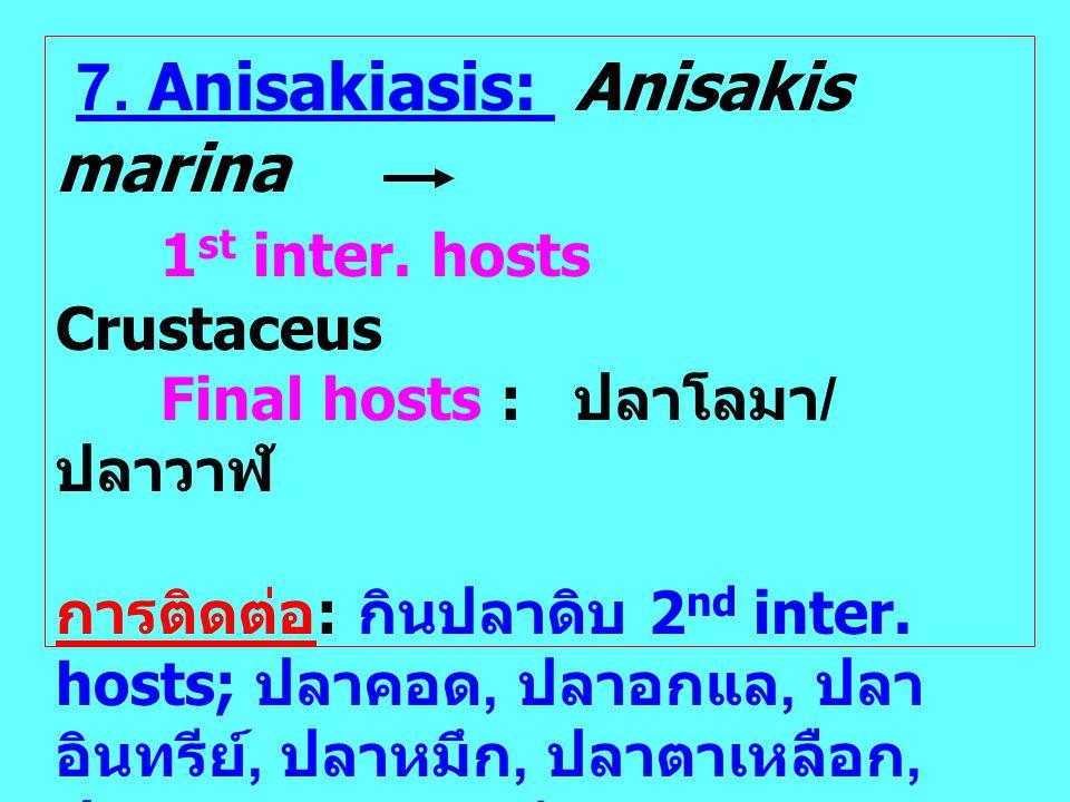 7. Anisakiasis: Anisakis marina 1st inter. hosts Crustaceus