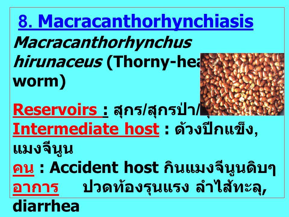8. Macracanthorhynchiasis