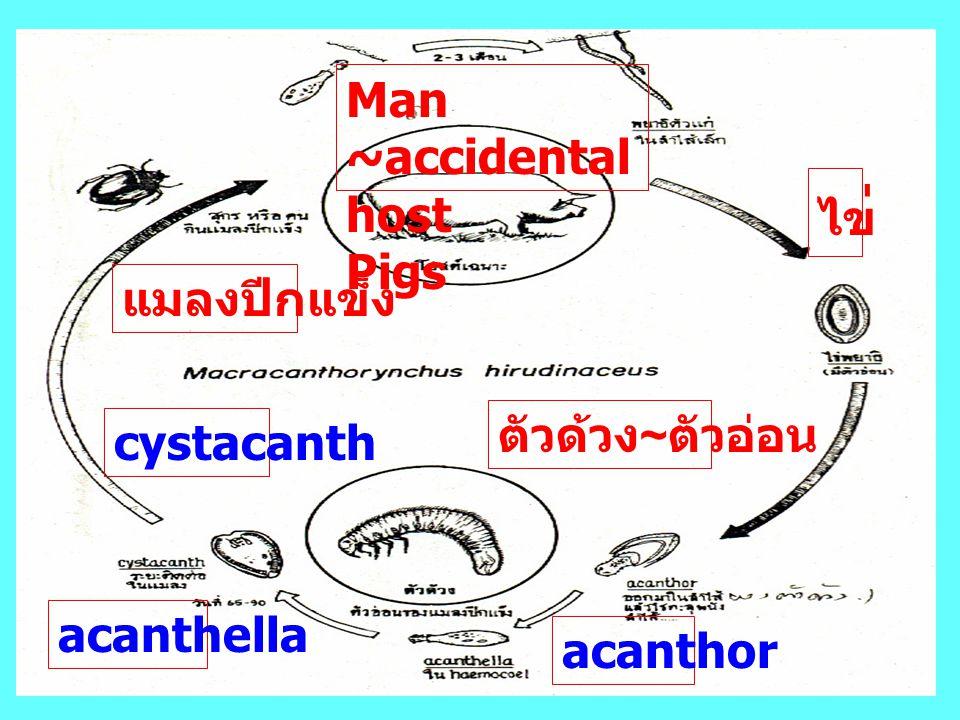 Man ~accidental host Pigs ไข่ แมลงปีกแข็ง ตัวด้วง~ตัวอ่อน cystacanth acanthella acanthor