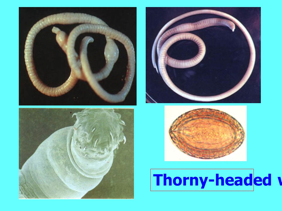 Thorny-headed worm