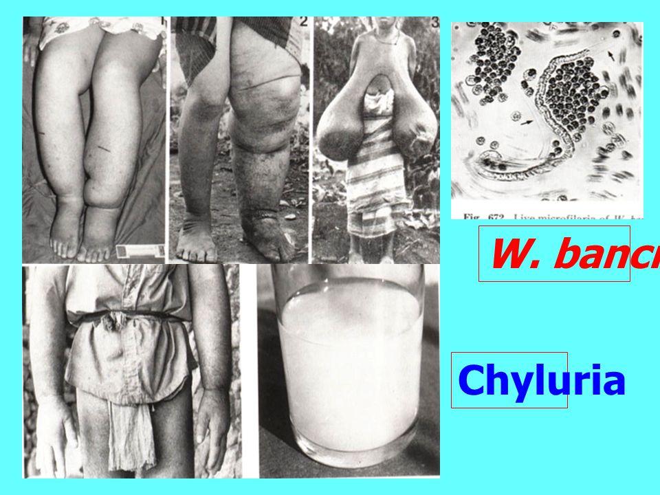 W. bancrofti Chyluria