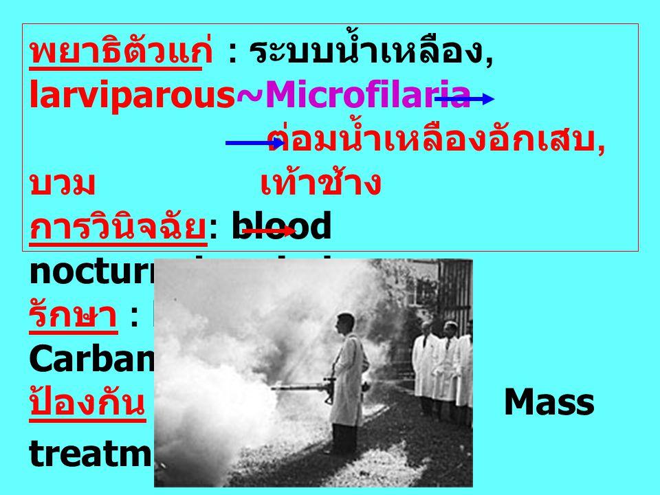พยาธิตัวแก่ : ระบบน้ำเหลือง, larviparous~Microfilaria