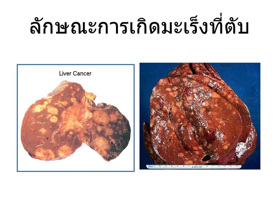 ลักษณะการเกิดมะเร็งที่ตับ