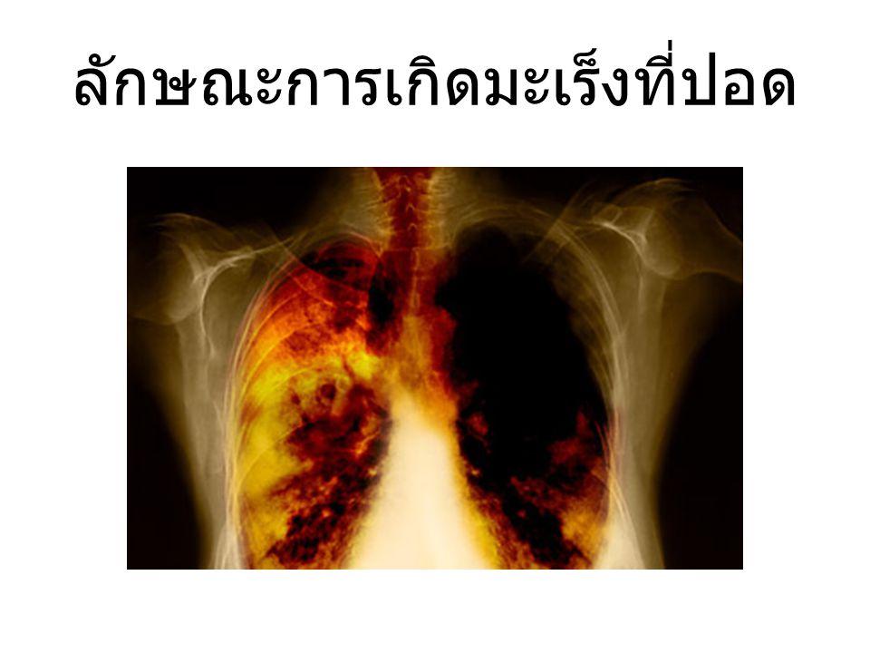 ลักษณะการเกิดมะเร็งที่ปอด