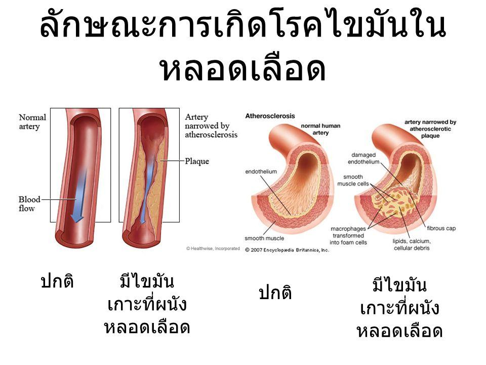 ลักษณะการเกิดโรคไขมันในหลอดเลือด