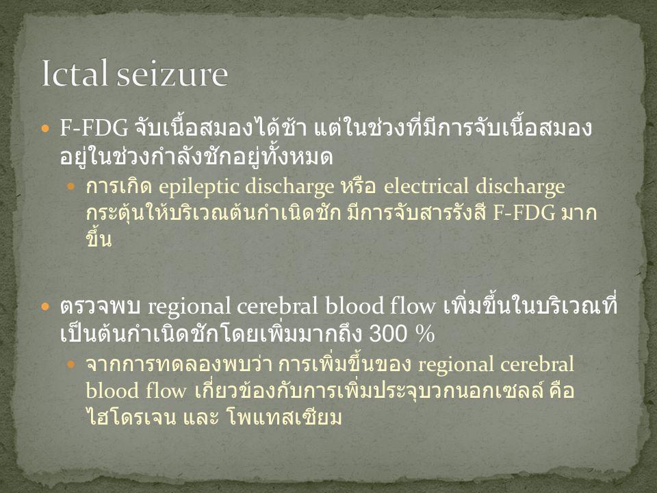 Ictal seizure F-FDG จับเนื้อสมองได้ช้า แต่ในช่วงที่มีการจับเนื้อสมอง อยู่ในช่วงกำลังชักอยู่ ทั้งหมด.