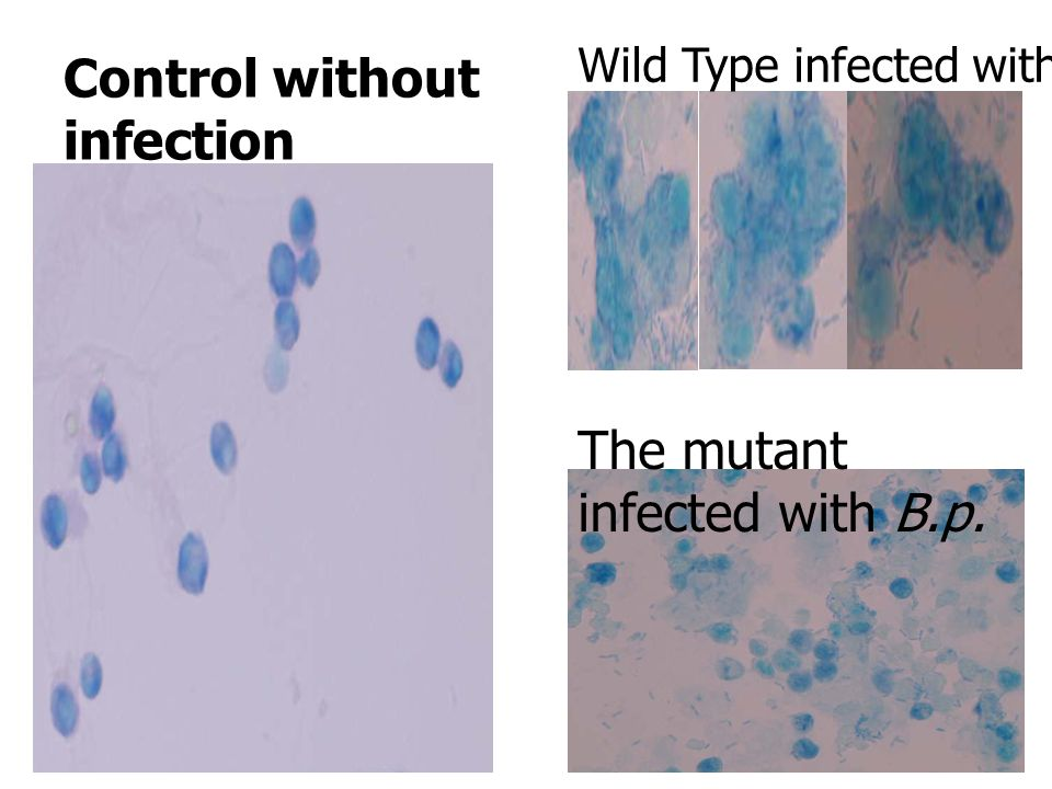 Control without infection Wild Type Raw264.7 cell