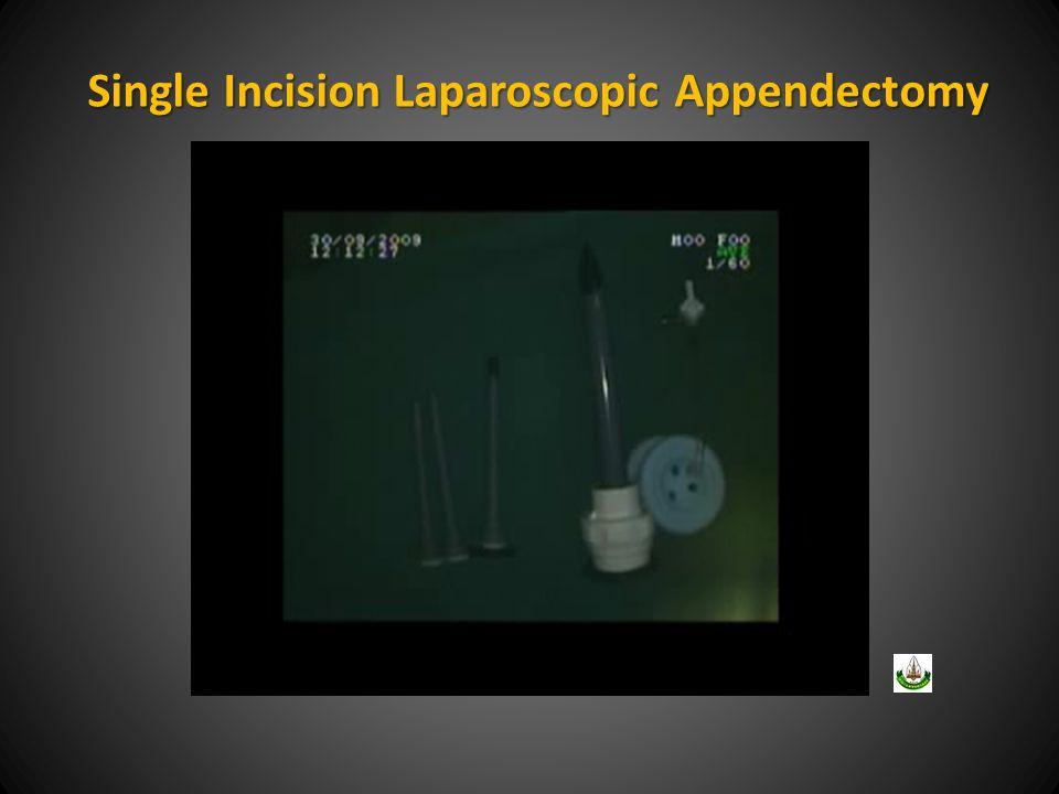 Single Incision Laparoscopic Appendectomy