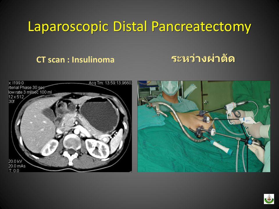 Laparoscopic Distal Pancreatectomy