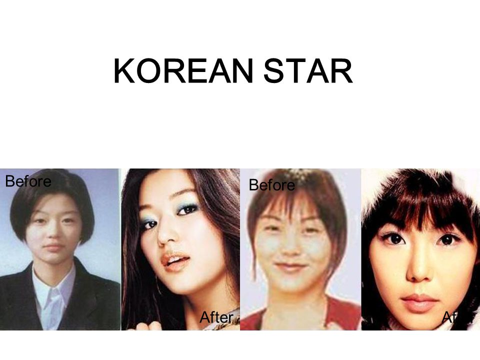 KOREAN STAR Before Before After After