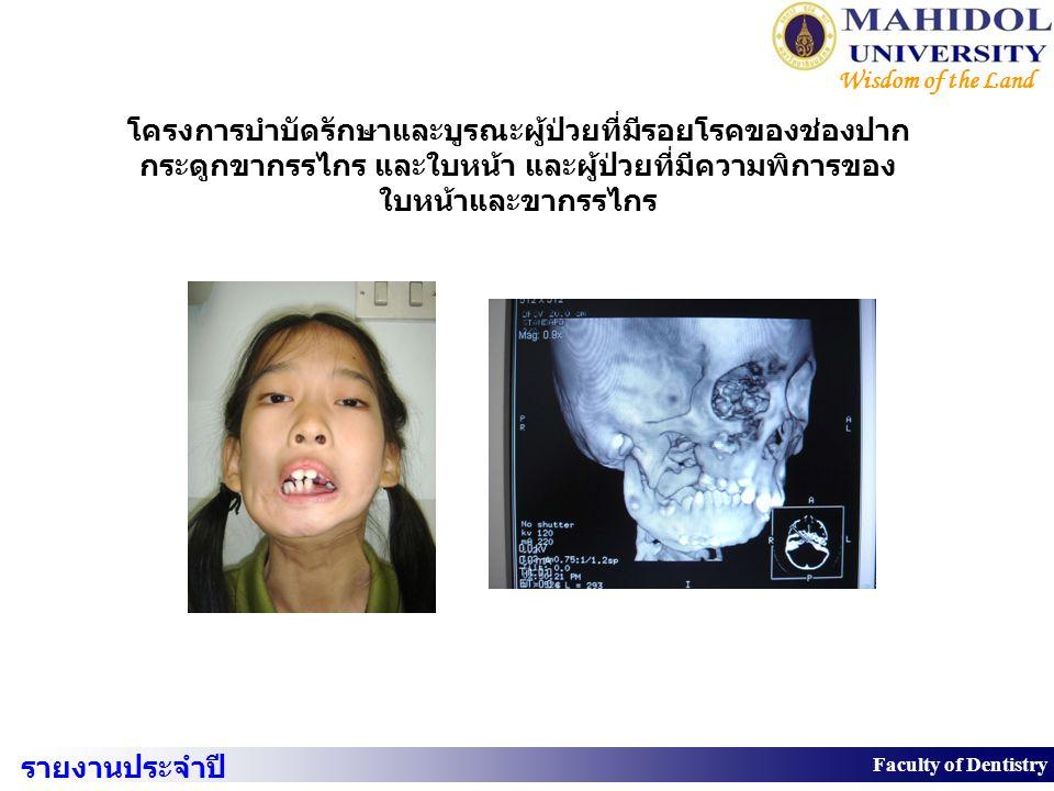 โครงการบำบัดรักษาและบูรณะผู้ป่วยที่มีรอยโรคของช่องปาก กระดูกขากรรไกร และใบหน้า และผู้ป่วยที่มีความพิการของ ใบหน้าและขากรรไกร