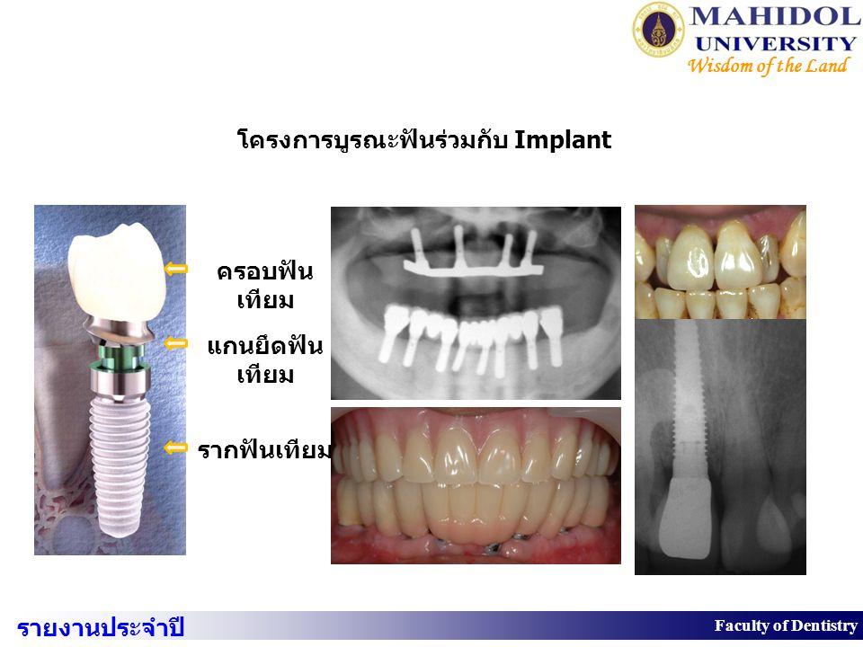 โครงการบูรณะฟันร่วมกับ Implant